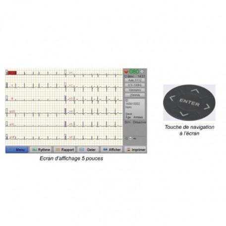 ECG - New Tech